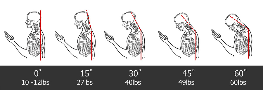 head forward posture, cell phone use, neck pain, back pain, bad posture, chiropractor